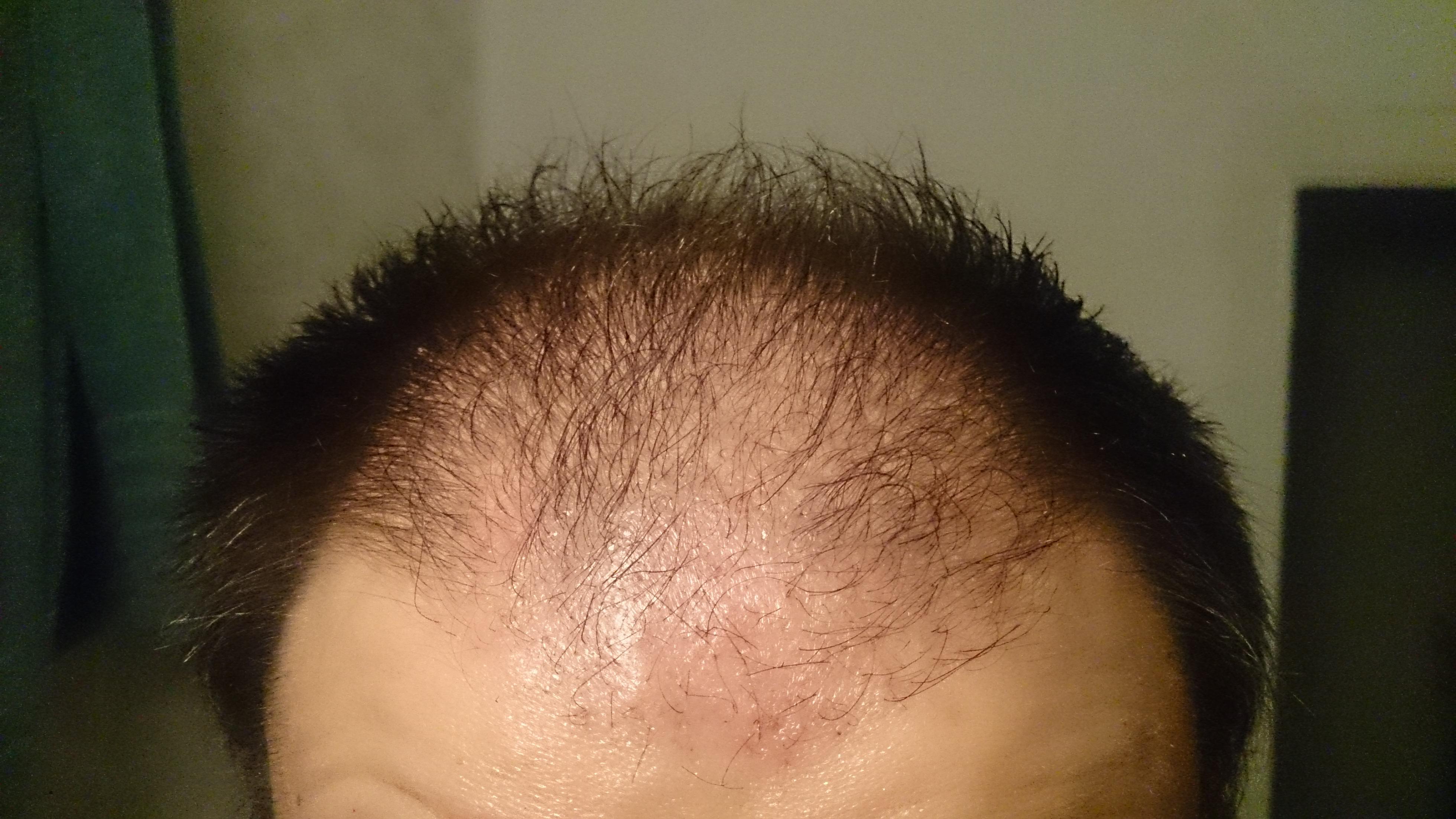2 meses despu s del transplante capilar trasplante de pelo antes y despues - En que meses se cae mas el pelo ...