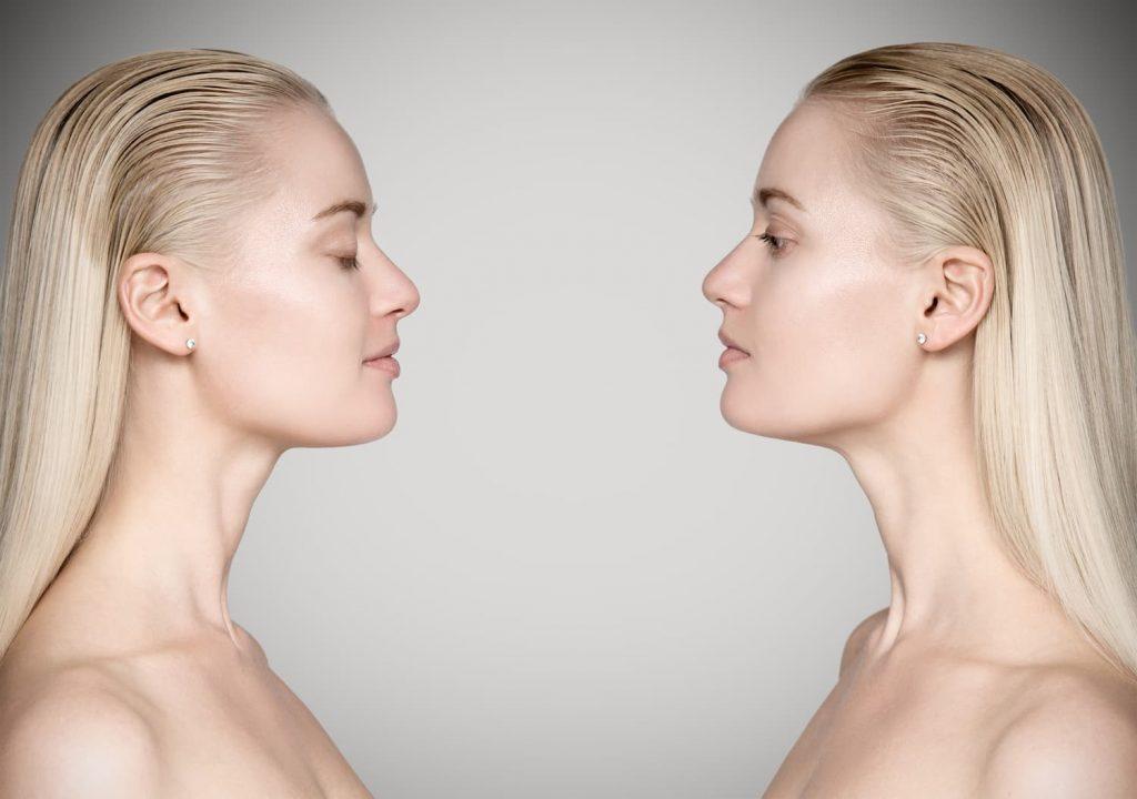 Clonación capilar y la multiplicación del cabello